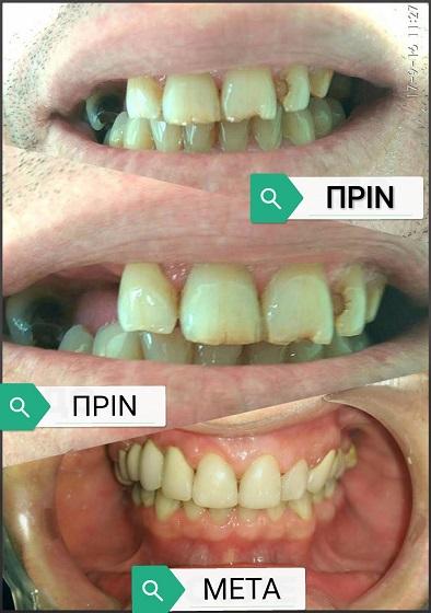 οδοντίατρος Θεσσαλονίκη Καλαϊτζίδου